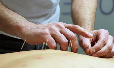 acupuntura1