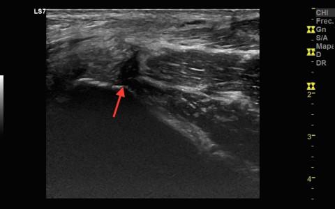 Lesión en tendón adductor