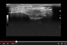 Vídeo de tratamiento con EPM
