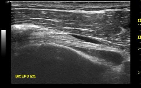 Tenosinovitis tendón PLB