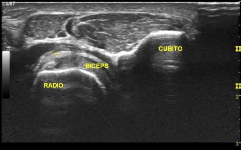 EPM en Bíceps Braquial